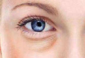 深圳弘美整形医院割双眼皮保持时间 割双眼皮多久可以修复