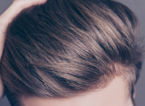深圳武警医院植发整形科植发 拯救秃头星人