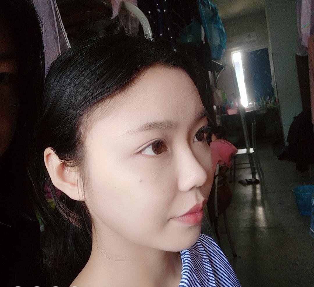 在北京壹加壹植发医院种了发际际 让我变得更加自信美丽