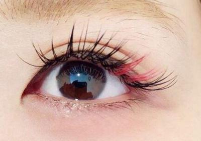 青岛海伦植发怎么样 睫毛种植让你双眸深邃迷人