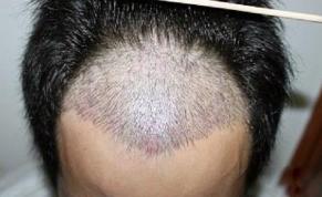 深圳北大医院植发整形科头发种植贵吗 头发种植全过程