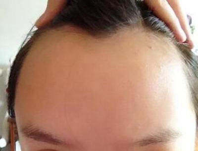 江西广济医院植发多少钱 种植发际线的价格贵不贵