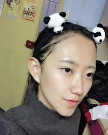 重庆长城植发医院发际线种植后让我找回了自信 告别大额头