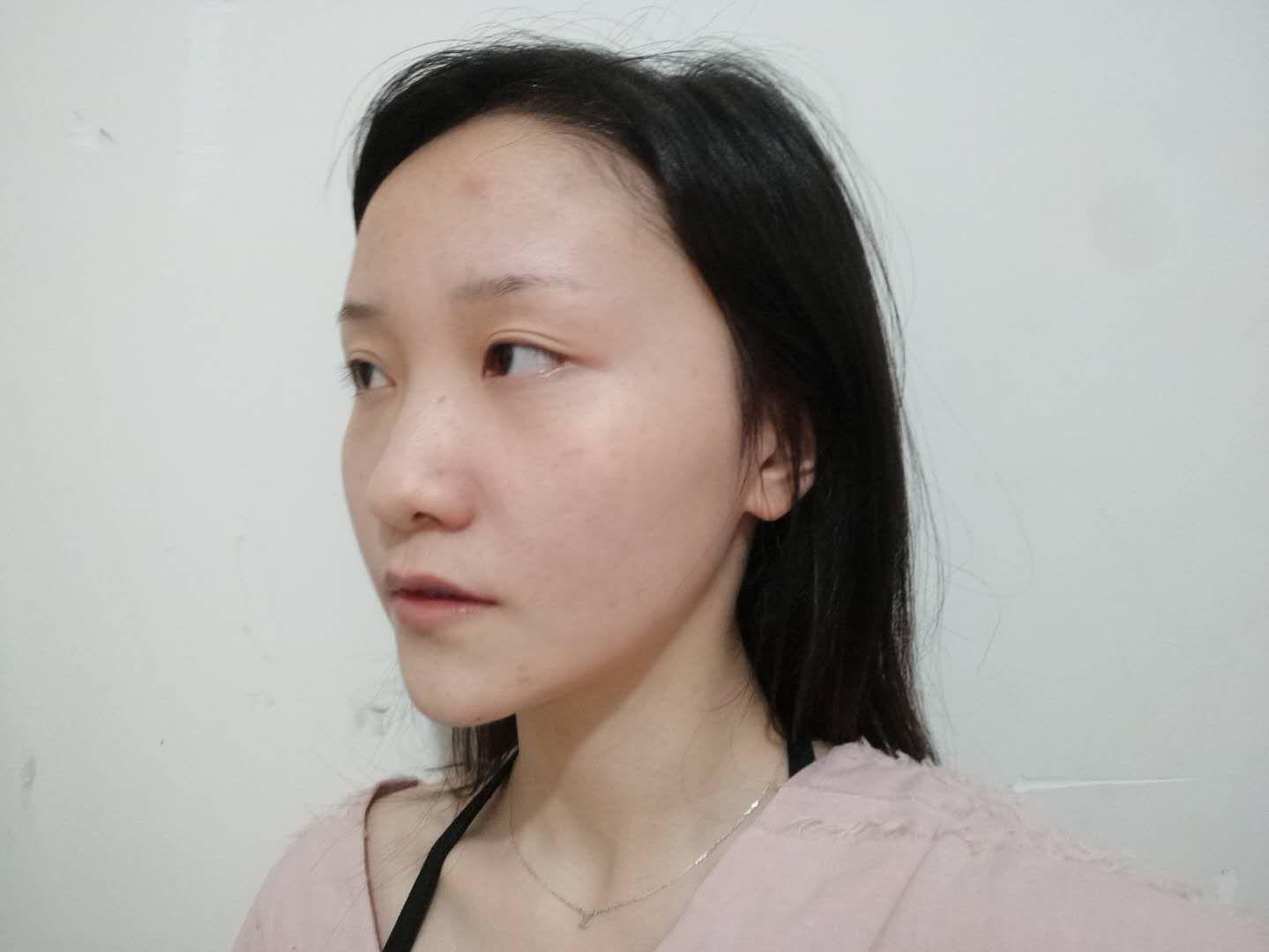 福州第八医院植发中心种植发际线的经历 美美的秀发真开心