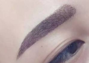 合肥壹加壹植发医院眉毛种植多久看到效果 需要做几次手术