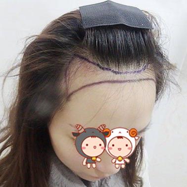 北京红旗植发整形医院让我摆脱了秃头的危机 让我重回自信