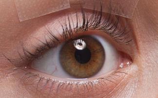 埋线双眼皮是永久的吗 大连朗域整形医院埋线双眼皮价格