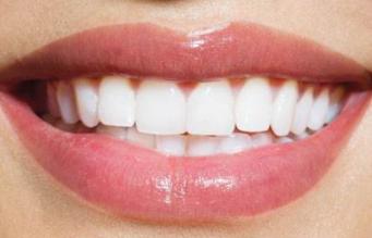淄博向东整形医院漂唇的效果能保持多久 漂唇术前的注意事项
