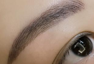 沈阳科发源植发医院眉毛种植 有效解决眉毛的各种问题