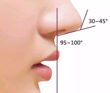 鼻尖整形手术的方法有哪些 北京亚峰整形医院怎么样