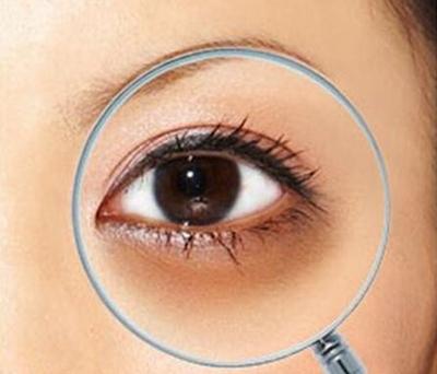去黑眼圈的方法 昆明大华整形激光美容轻松祛除熊猫眼