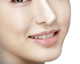 烟台鹏爱医疗美容医院隆鼻修复 让鼻子更加自然