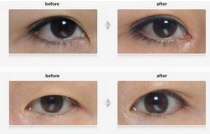眼脸轻度下垂不手术可以矫正吗 广州专生美整形医院有方法