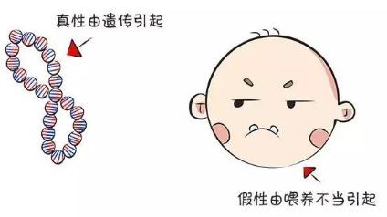 小孩子地包天需要矫正吗 上海美奥口腔医院地包天矫正价格