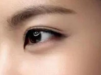 哈尔滨艺星整形医院眼部整形价格表 开内眼角能永久吗