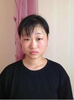 桂林星范整形医院给了我新的人生 眼综合+假体隆鼻案例分享