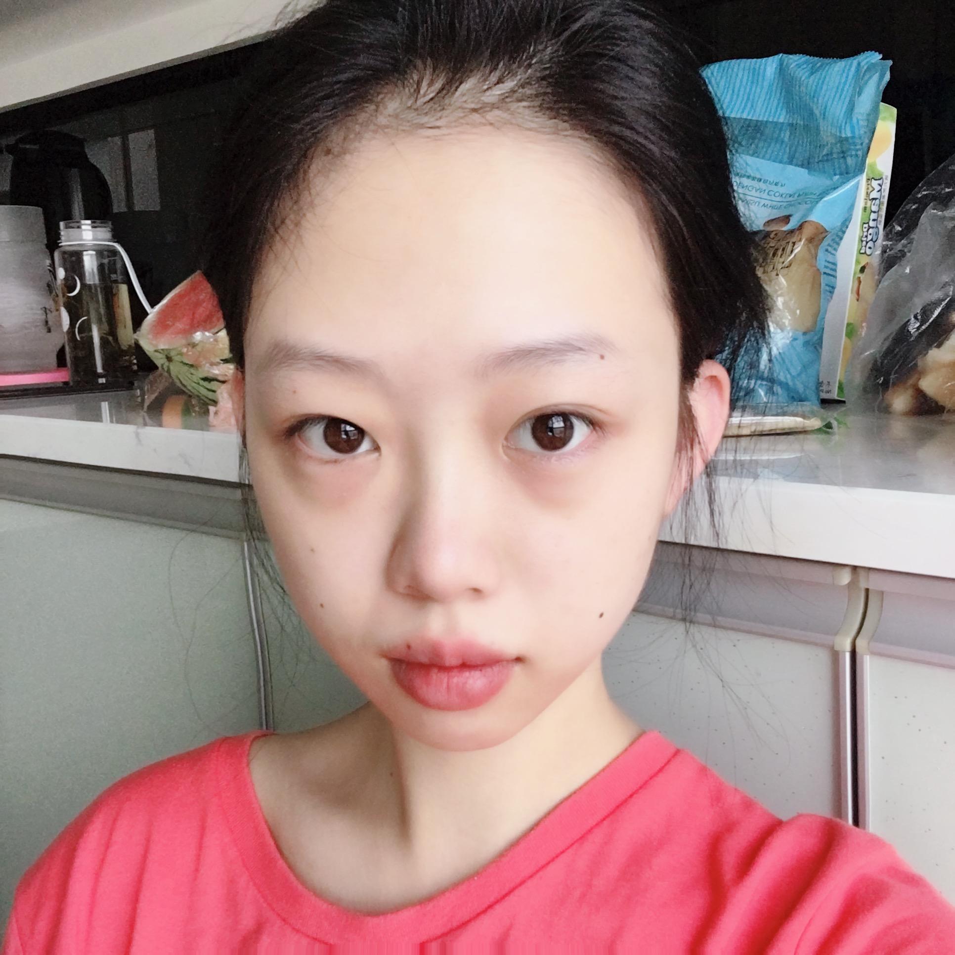在温州苍南人民医院整形外科做了激光祛眼袋 让我变得更加明媚动人