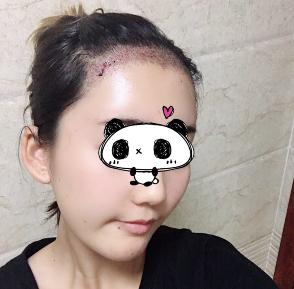 广州科发源植发医院发际线种植 终于能拥有浓密的头发了