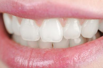 牙齿矫正治疗方法有哪些 重庆做牙齿矫正哪家好