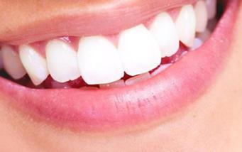 重庆华诺世口腔门诊部怎么样 未成年人能做种植牙吗
