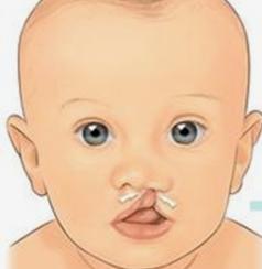 唇裂修复术什么时候做好 广州博美整形医院正规吗