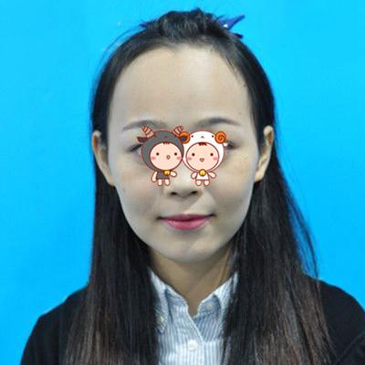 北京科发源植发整形医院成功案例分享 好看发际线真的很衬托脸型