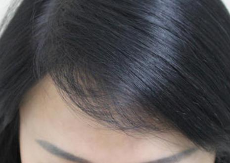 广州新发现植发际线的价格是多少 手术安全吗