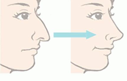 鹰钩鼻矫正后图片 广州紫馨整形医院成就您的高鼻梁大眼睛
