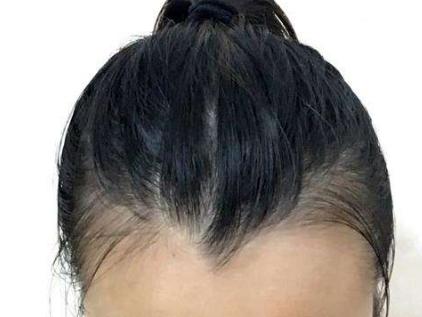 郑州华山植发医院8月送福利啦 美人尖-POLO纳米无痂种植给你好看