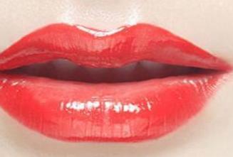 唇裂整形手术的过程是怎样的 深圳美度美容医院唇裂修复优势