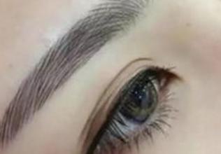 眉毛种植贵吗 大连京城毛发移植医院眉毛种植要多少钱