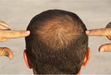 北京高新医院毛发移植科做头发加密怎么样 多久能见效