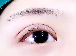 【眼部整形】切开双眼皮/眼整形 给你闪亮动人的眼睛