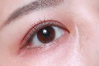 上海切开术双眼皮哪好 价格多少