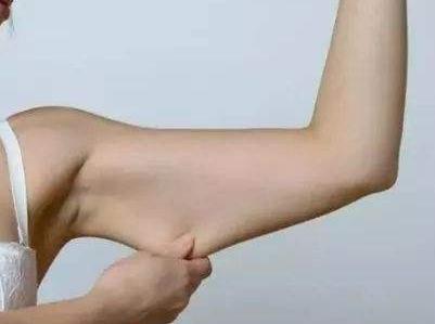 手臂吸脂可以瘦几厘米 湛江华美整形医院吸脂瘦手臂多久见效