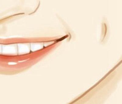 酒窝整形 你也可以拥有甜美笑容