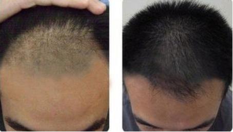 长沙方泰医院植发科做头发加密得花多少钱