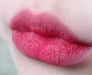 内蒙古蓝天整形医院漂唇后能保持多久 给你诱人红唇