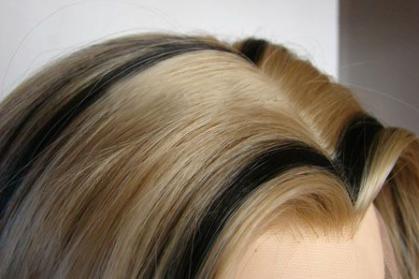 北京新生发国际毛发移植医院种植美人尖效果如何 费用高吗