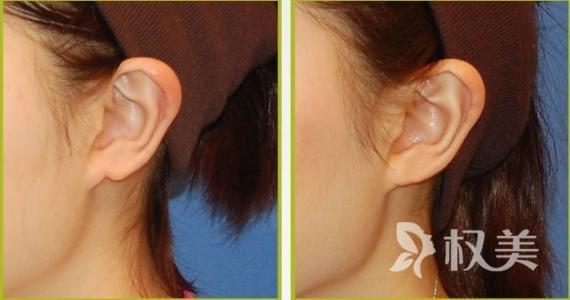 耳廓畸形 耳朵畸形矫正价格表