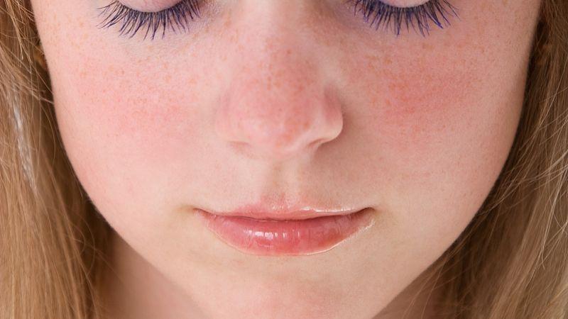 激光祛斑 简单安全给你净白肌肤