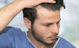 发际线会随着年龄后移吗 南昌科发源植发医院靠谱吗