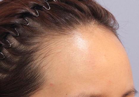 发际线种植过程分几步 苏州美贝尔种植发际线效果怎么样