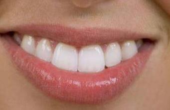 贵阳丽都和贵阳美贝尔整形哪好 唇裂修复种类有哪些