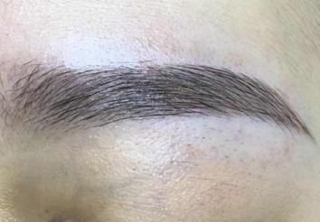 眉毛种植能终身有效吗 重庆仁爱医院毛发种植科好吗