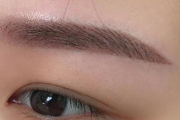 重庆真伊医院毛发种植科 眉毛种植价格多少