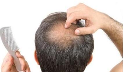 宁夏华美毛发种植医院种植头发多少钱 解决脱发难题