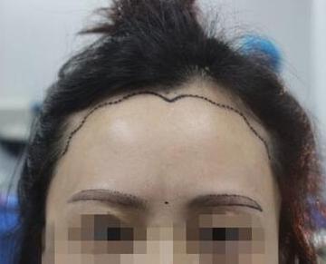 合肥丽人整形医院植发科种植美人尖的价格是多少 贵不贵