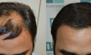 发际线种植多少钱 西安新锐植发医院好不好