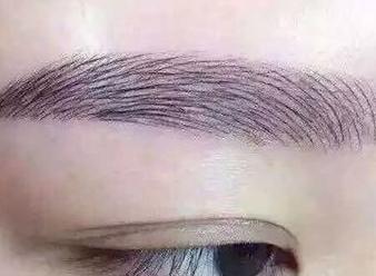 重庆华肤医院毛发移植科眉毛种植有什么危害 要注意什么